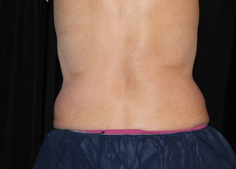 coolsculpting-12wk-after