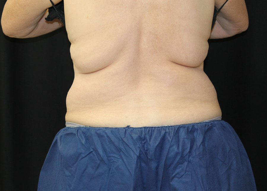 coolsculpting-12wk-before